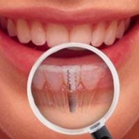 dentista-roma-torrino-impianti-4