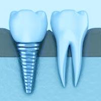 dentista-roma-torrino-impianti