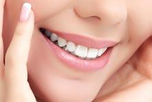 sbiancamento-denti-roma